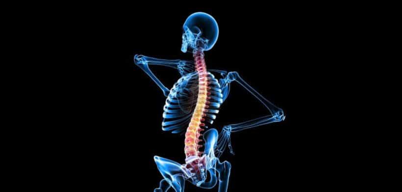 lesiones frecuentes accidente moto medula espinal