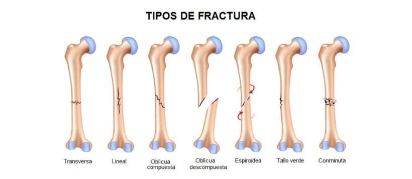lesiones frecuentes accidente moto tipos fractura pierna